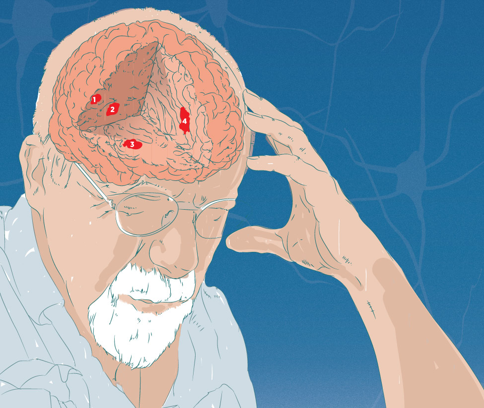 Illustration of elderly man with cutaway of brain